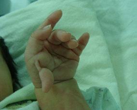 多指症の画像 p1_2