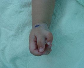 多指症の画像 p1_3